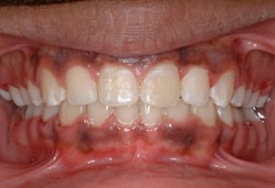 front-Intraoral-Photo-2-2014.jpg